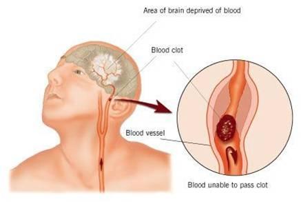 schema fibrillazione atriale